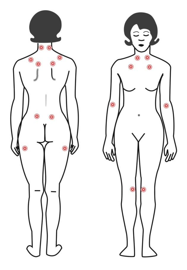 Fibromyalgie: wat te doen?